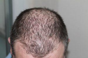 נשירת שיער בגיל צעיר